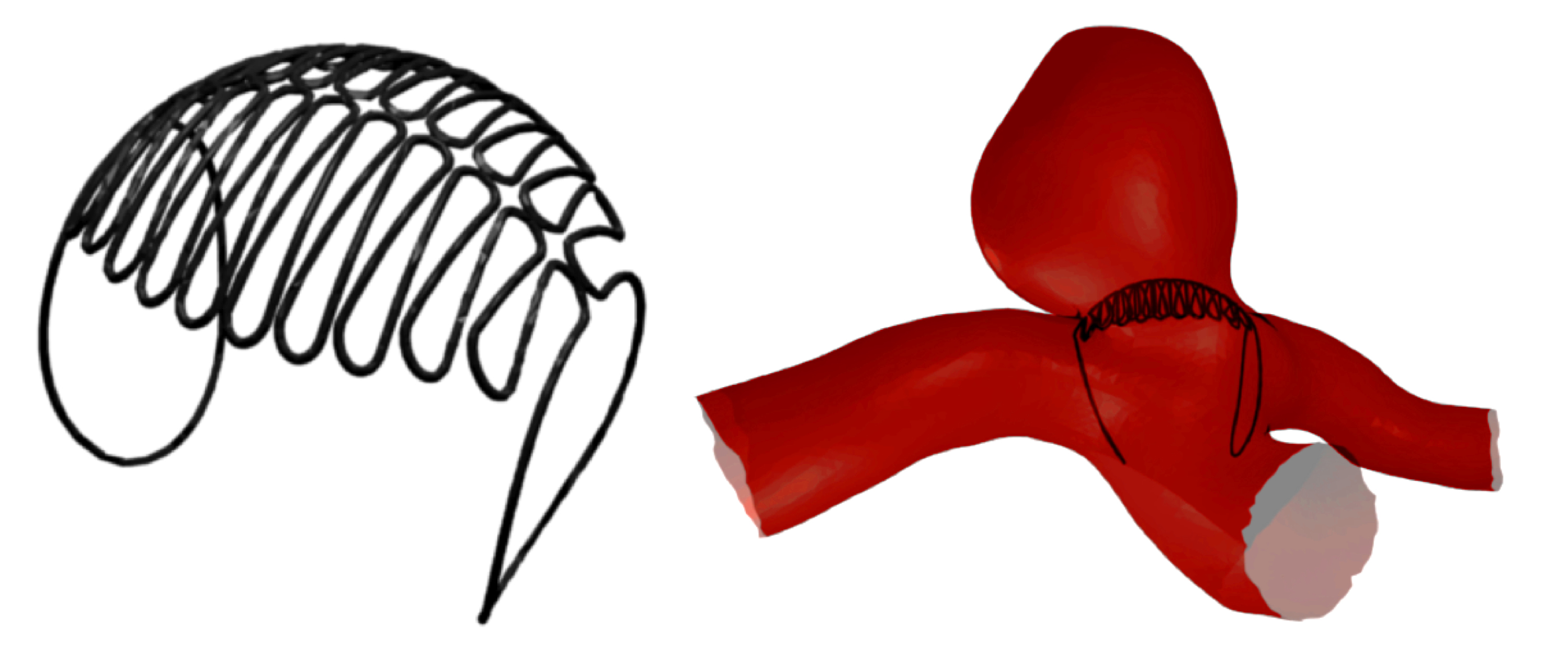 Sphere Device (Left) and Sphere deployed in a Bifurcation Aneurysm (Right)